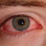 conjuctivitis, pink eye, eye, red eye